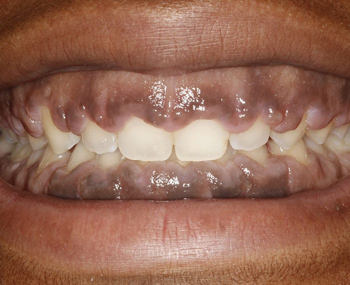Crown Lengthening Patient Before